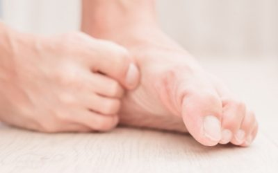 Athletes Foot – not just for athletes!