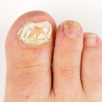 Why do I need to test my fungal nail?