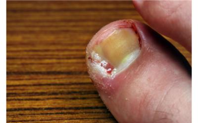 5 tips on preventing an ingrowing toenail