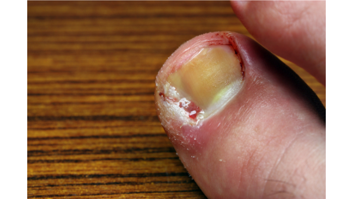 5 tips on preventing an ingrowing toenail