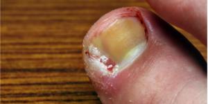 Ingrowign toenail
