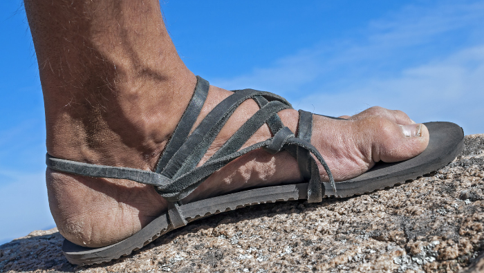Sandals with cracked skin