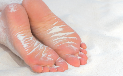 Foot Melanomas – why apply sun cream to your feet!